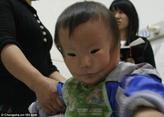 3c12452300000578-0-the_child_born_inchina_s_hunan_province_suffered_from_a_severe_t-a-35_1484220370140